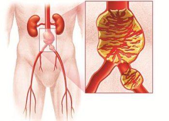 Vỡ phình động mạch chủ bụng là gì? Những dấu hiệu liên quan đến bệnh