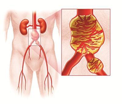 vỡ phình động mạch chủ bụng