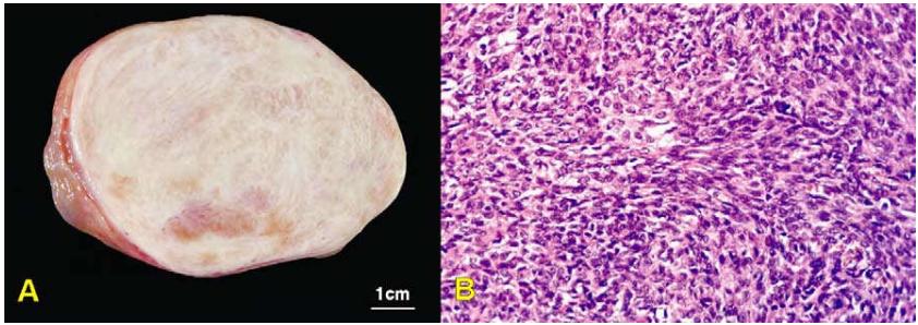 Hỗ trợ buồng trứng-u tế bào mô đệm gây ra như thế nào?