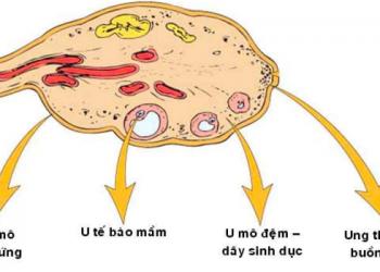 Hỗ trợ u buồng trứng tế bào mô đệm gây ra như thế nào? Cách nhận biết và điều trị