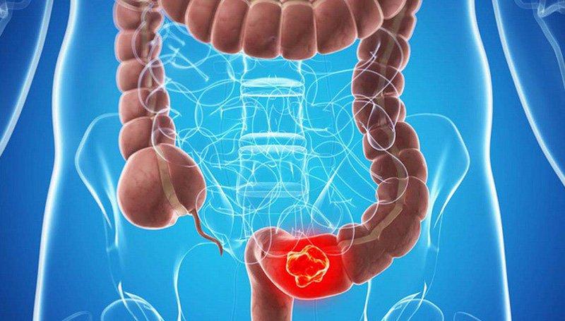 Nguyên nhân gây bệnh u mỡ đại trực tràng như thế nào?