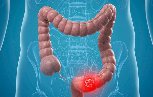 Các bệnh do u mỡ đại trực tràng gây ra là gì?