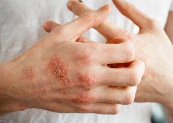 Bệnh bàn tay gây ra như thế nào? Thông tin chung và 7 chế độ ăn kiêng cho bệnh bàn tay