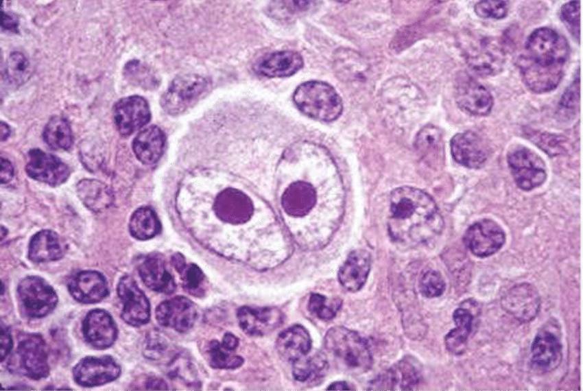 Các hạng mục kiểm tra bệnh Leterer-Siewe là gì?